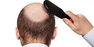 تبلیغاتی برای کسب درآمد کاشت مو تقویت مو