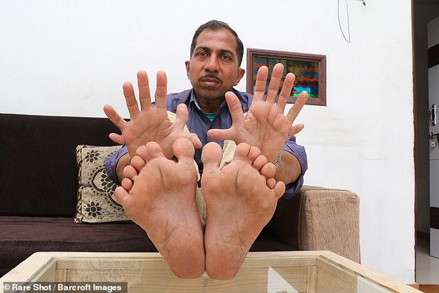 مردی با 28 انگشت 1