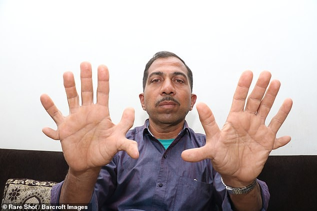 مردی با 28 انگشت 2