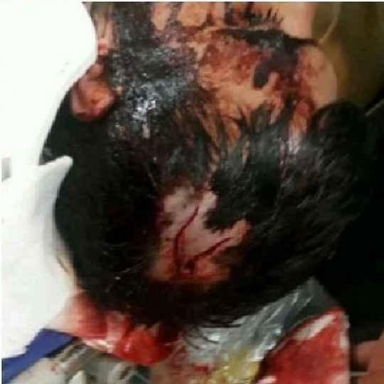 امیر دهقان طلبه ای که مورد حمله 9 نفر با سلاح سرد قرار گرفت 4
