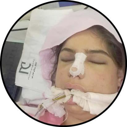 سحر اسکندری بعد از جراحی زیبایی