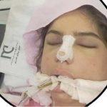 داستان مرموز مرگ دختر 18 ساله بعد از عمل جراحی زیبایی بینی + عکس