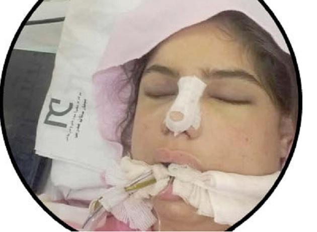 سحر اسکندری دختر 18 ساله عمل جراحی بینی مرگ بعد از جراحی زیبایی بینی