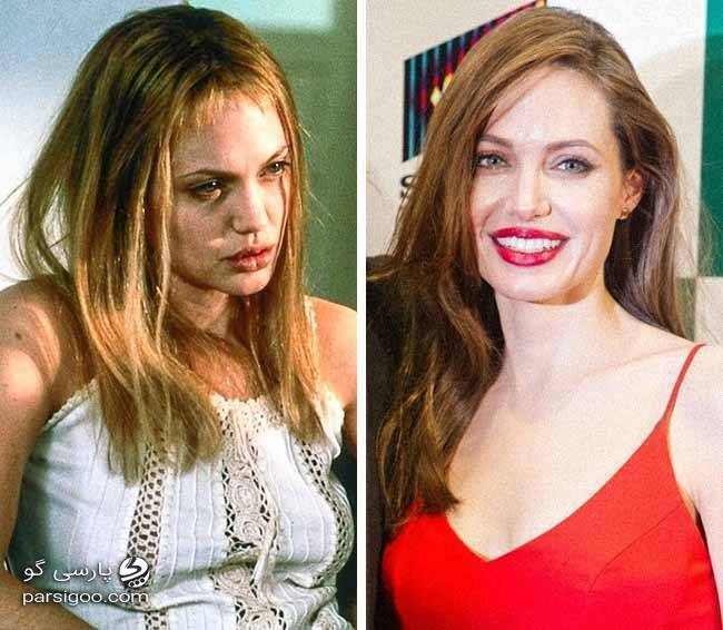 عکس چپ آنجلینا جولی زمانی که معتاد بود و عکس راست آنجلینا جولی زمانی که ترک کرد