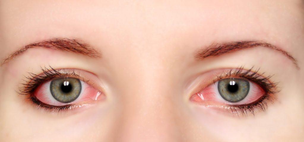 قرمزی چشم مشکل چشم
