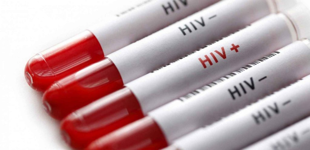 بیماری ایدز اچ آی وی مثبت اچ آی وی منفی. آزمایش ایدز