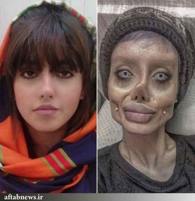 سحر تبر قبل و بعد از عمل زیبایی