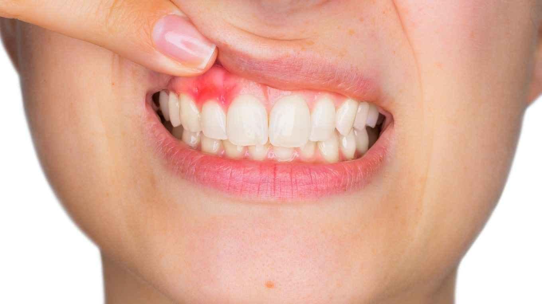 سرطان دهان علائم سرطان دهان پیشگیری از سرطان دهان