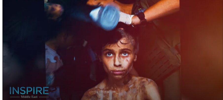 عبدالله 13 ساله از دست داعش جان سالم به در برد