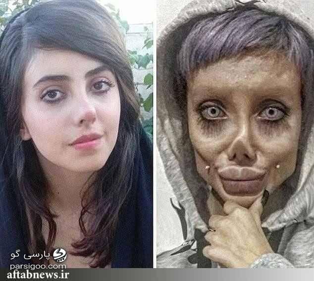 عکس ترسناک سحر تبر. عروس مردگان. فاطمه خ قبل از عمل زیبایی