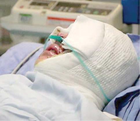 اسیدپاشی وحشتناکی که بینایی گوش و صورت را از همسر دکترای حقوق گرفت