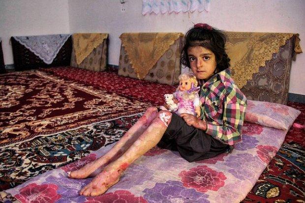 کودک مبتلا به بیماری ای بی (e.b) یا بیماری پروانه ای
