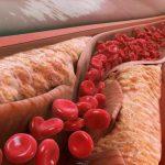 پایین آوردن کلسترول خون